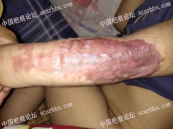 火锅烫伤后五个月还是增生的厉害