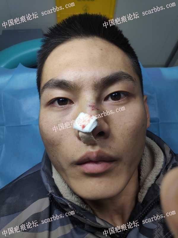 4.13鼻部疤痕治疗反馈