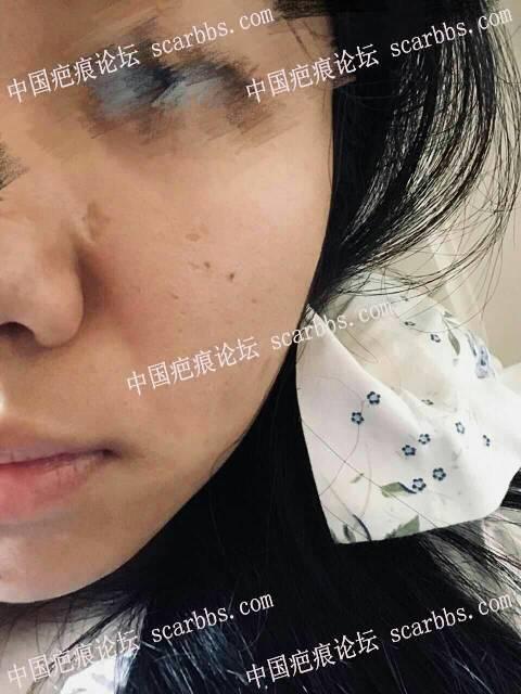 5月8日水痘凹陷性疤痕切除恢复过程记录