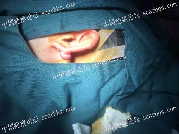疤痕疙瘩术后遵医嘱使用乾佰纳疤痕平和疤痕贴的修复记录