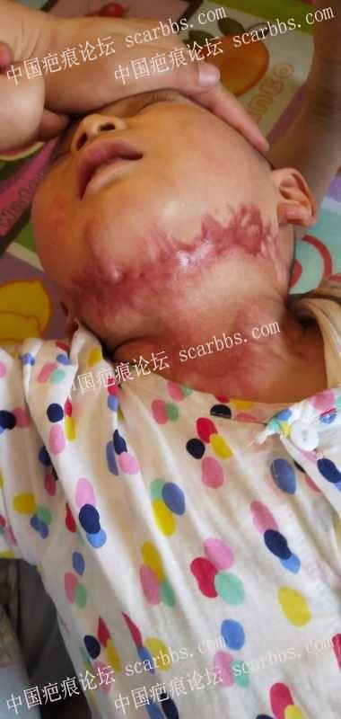 烫伤增生疤痕,西安西京医院哪个医生看的好?