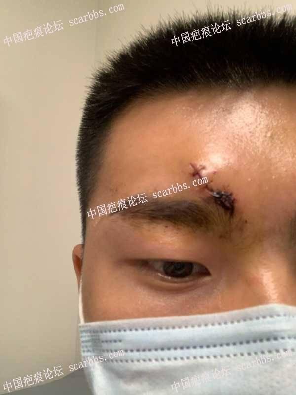 记录我额头抗疤过程,从缝针开始