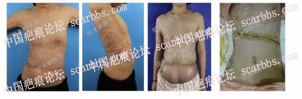 女孩腹部烧伤后疤痕怎样修复