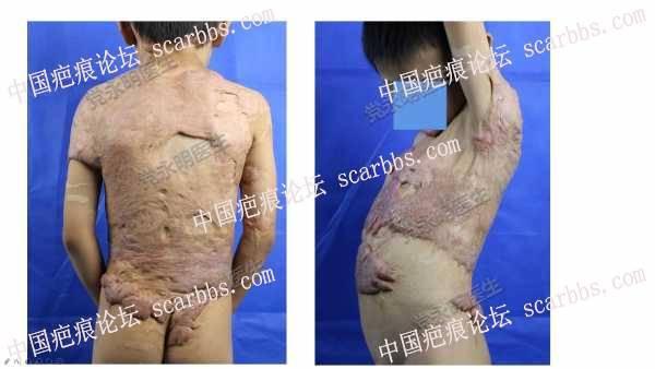 儿童增生性疤痕的扩张器治疗案例