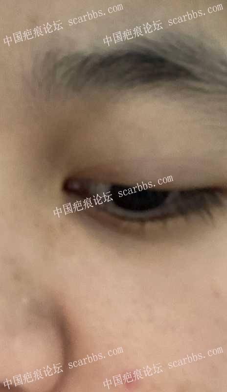 鼻部旁边的凹陷疤痕做了切缝