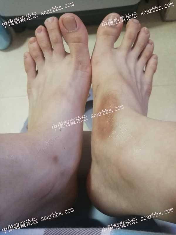 腿部色素疤痕,怎么淡化?