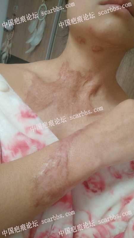 烫伤疤痕,几个月的治疗几乎平了