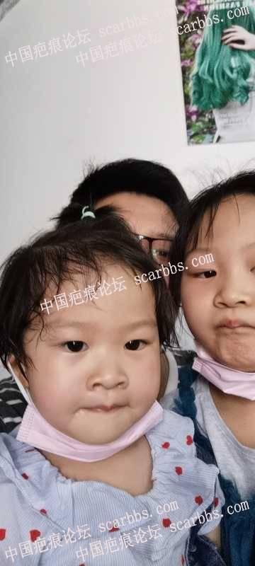小孩脸擦伤了,现在还是很明显,不知道还能恢复