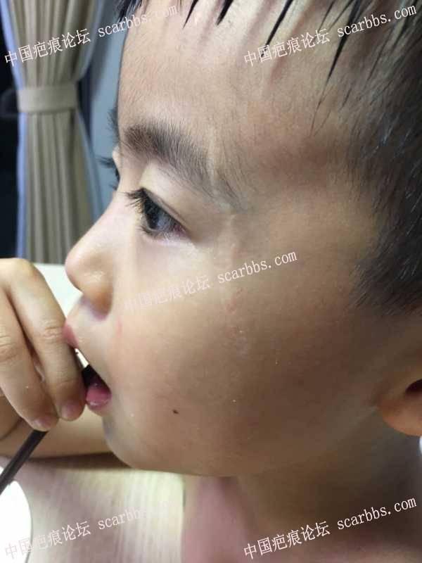 孩子去年8月摔伤面部,怎么才能让疤痕淡化