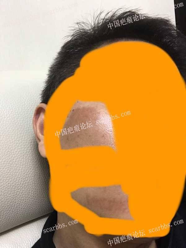 脸部摔伤两个月,色素沉着,多久能恢复?