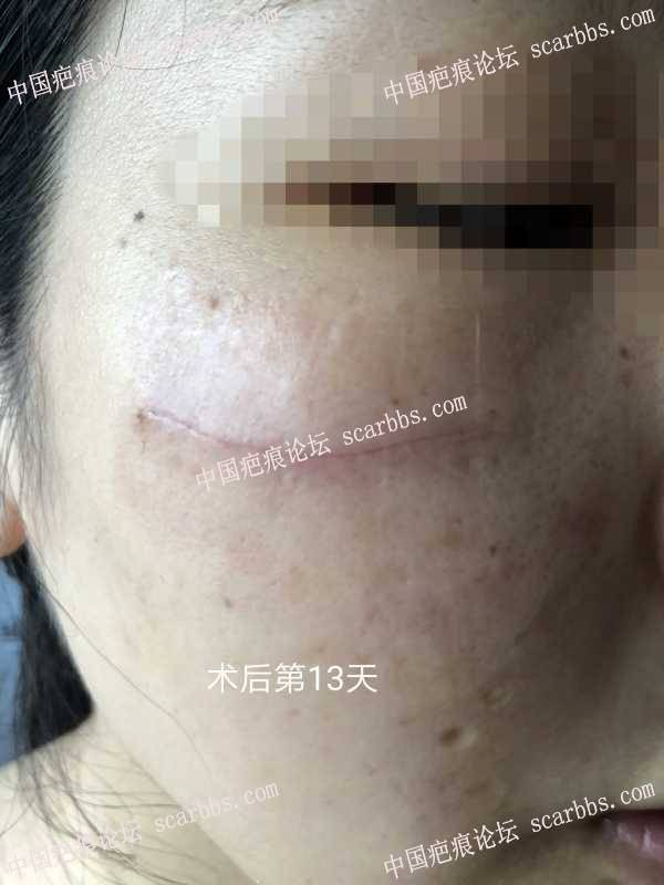 脸部二十多年的疤痕做了切缝手术