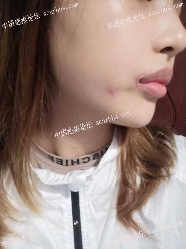 嘴角上扬疤痕,该怎么修复?