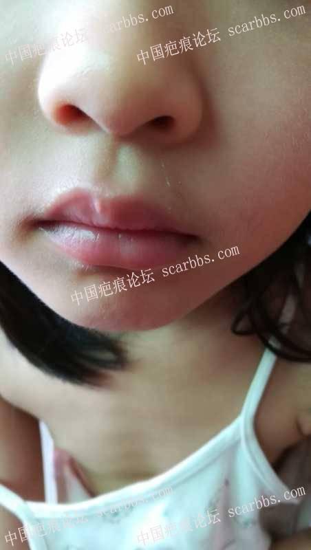 宝宝1岁多的时候被玩具碰伤嘴唇增生,四年多了