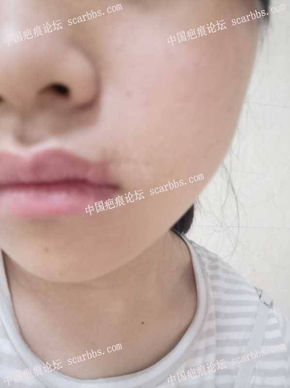 嘴边十几年的缝针凹陷疤痕,现在18岁,可能通过手术等方法恢复较好吗