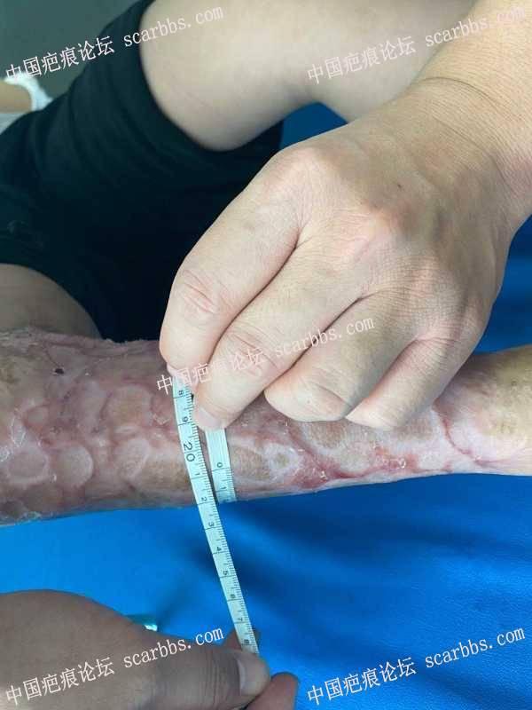 5岁女孩,车祸植皮疤痕增生严重
