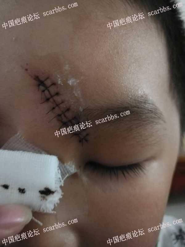 求助护理方法6岁,10针,额头磕伤,22天。