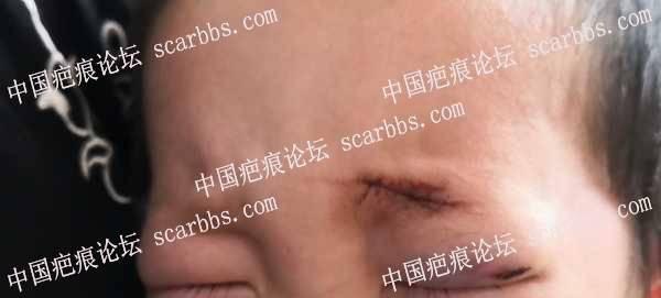 宝宝摔伤缝针,求疤友护理方法及产品