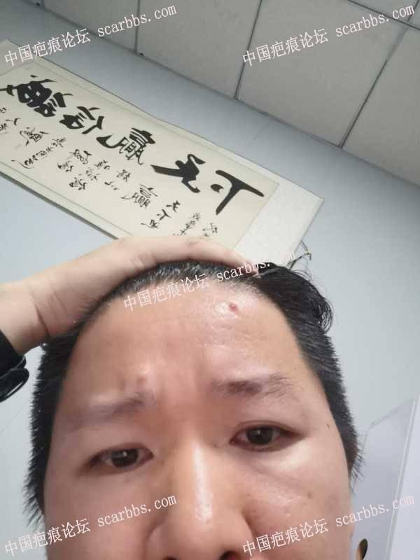 面部增生瘢痕切缝加浅放