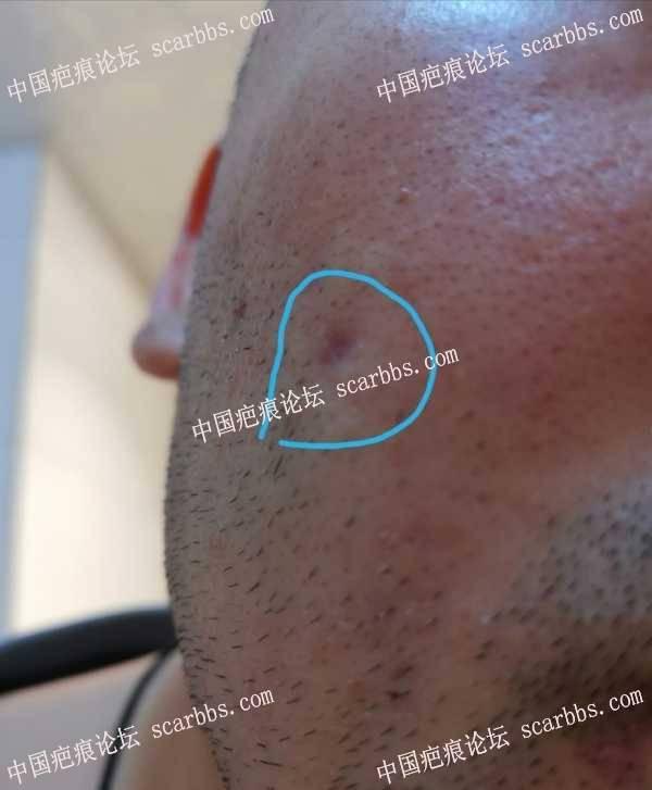 面部的痘坑,求医生或有类似经历的疤友给点建议