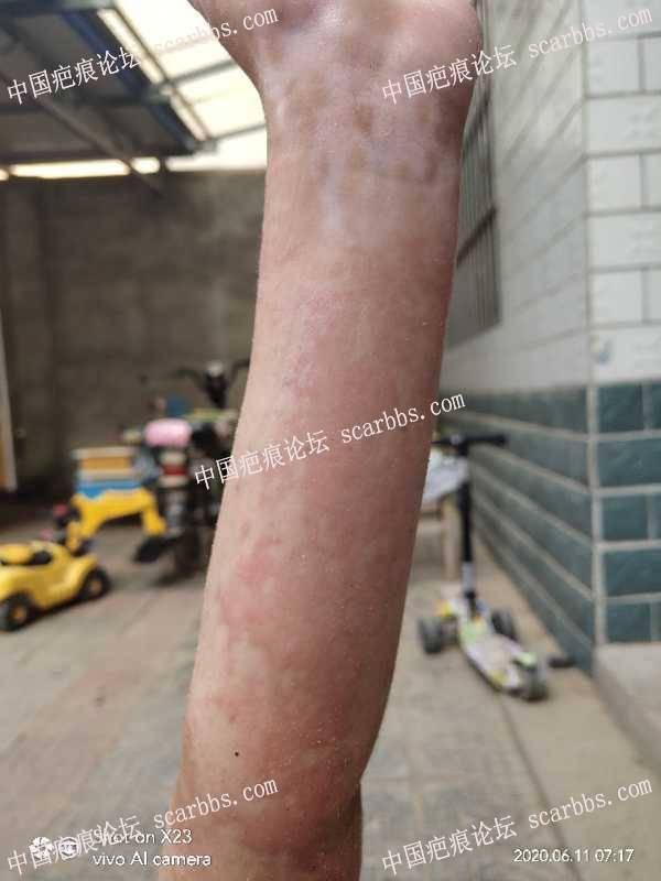 孩子手臂被烫伤,怎么祛疤