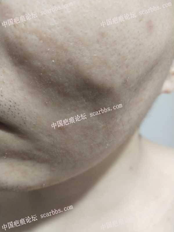 4月30号重庆杨教授手术切缝