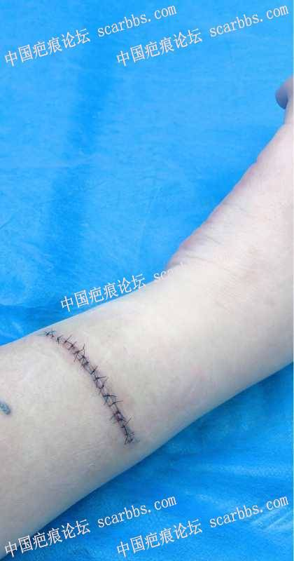 手臂疤痕修复之路