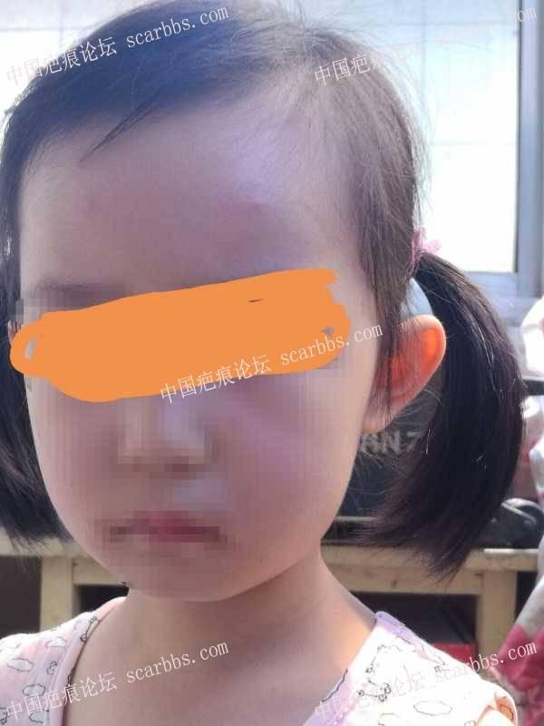 小孩脸部磕伤两年,请问疤痕明显吗?恢复的如何?