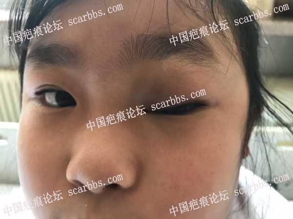 求助眼眶血管瘤手术后疤痕的护理