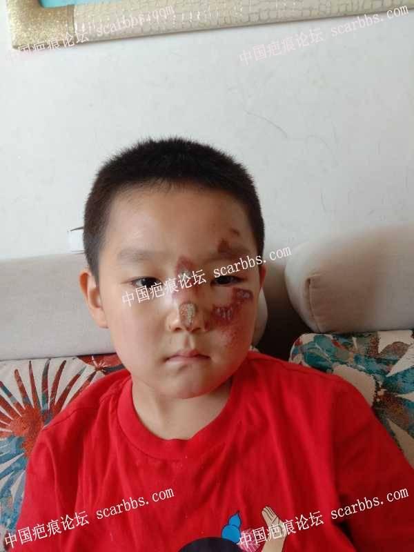 孩子脸部骑车擦伤,怎么护理
