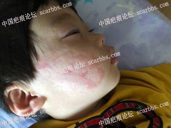光动力严重感染清创,皮肤重新愈合大片瘢痕 有增生