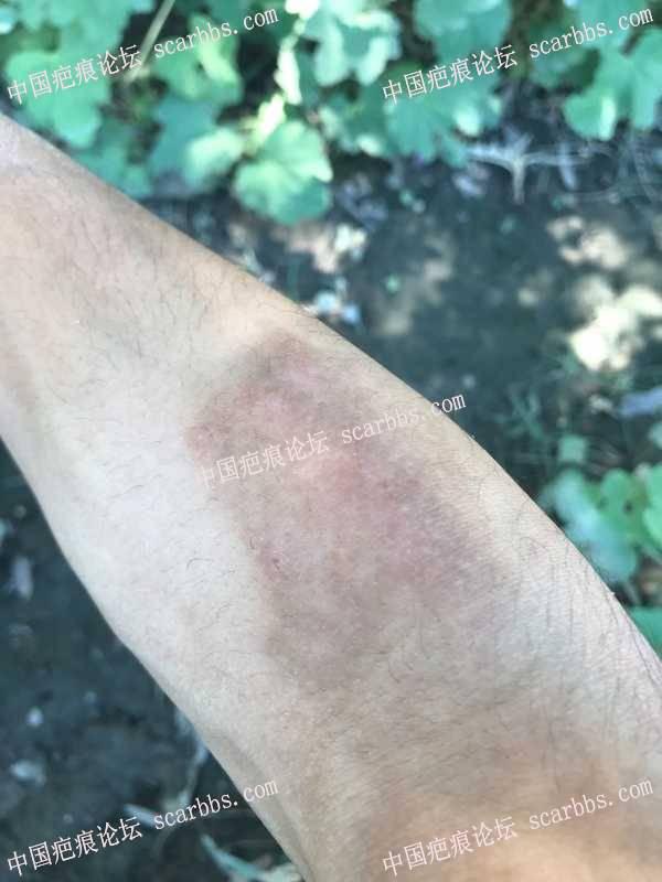 手臂烫伤面积较大,求治疗方法