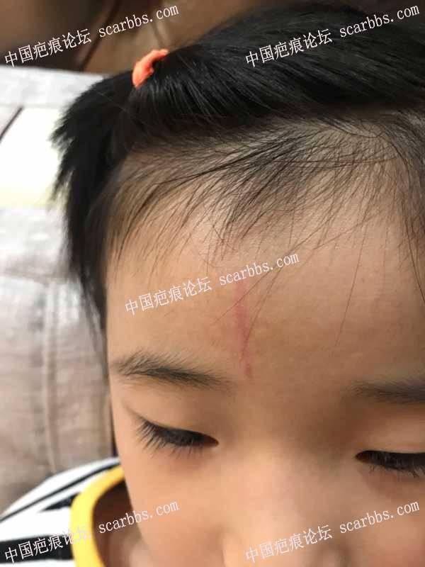 五岁女宝,额头竖伤,恢复记录
