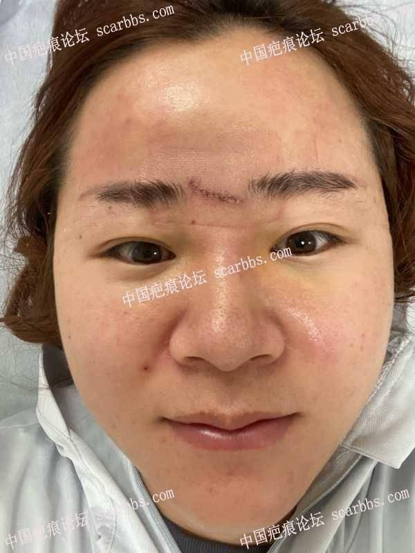 额头凹陷疤痕,怎么护理?