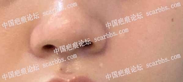 脸部药水点痣留下来的白色疤痕,医生可以治疗吗