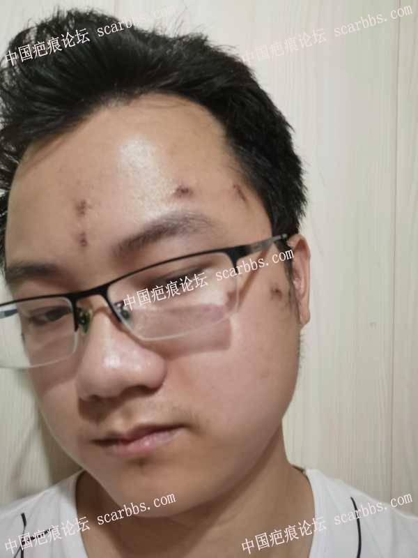 天津做的水痘坑切缝反馈