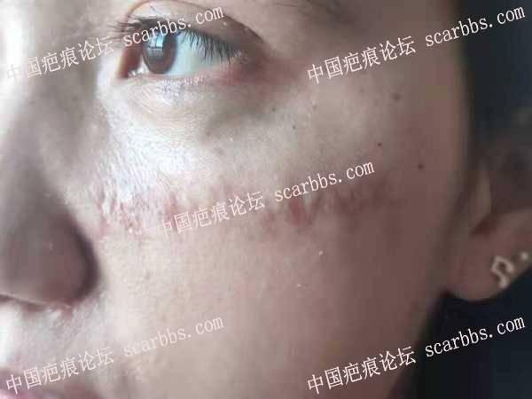 面部蜈蚣样疤痕治疗一年基本上满意了