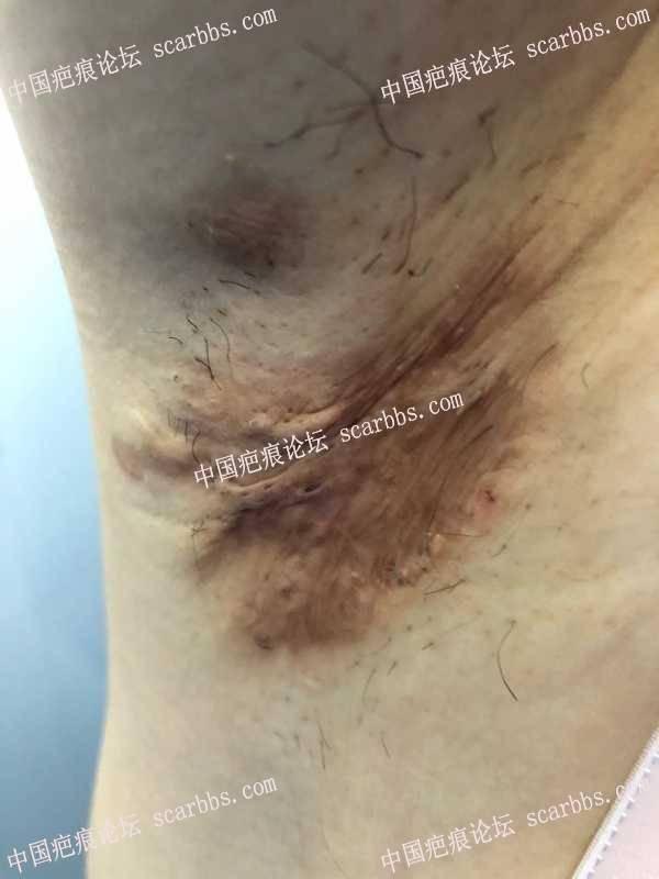 腋下粘连疤痕以及色素沉着,怎么修复?