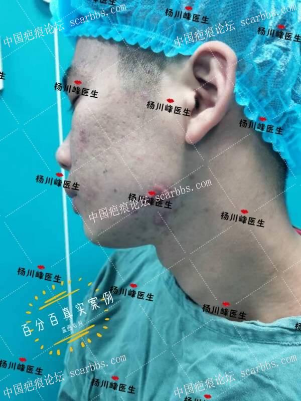 双侧下巴疤痕疙瘩的治疗之路
