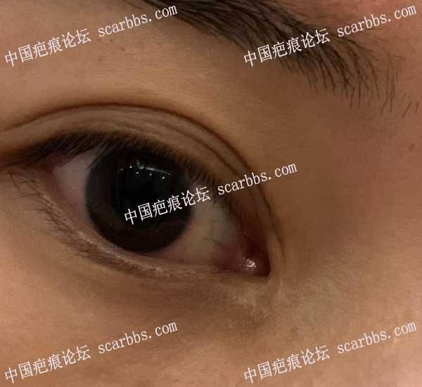 开眼角手术疤痕,已有三年