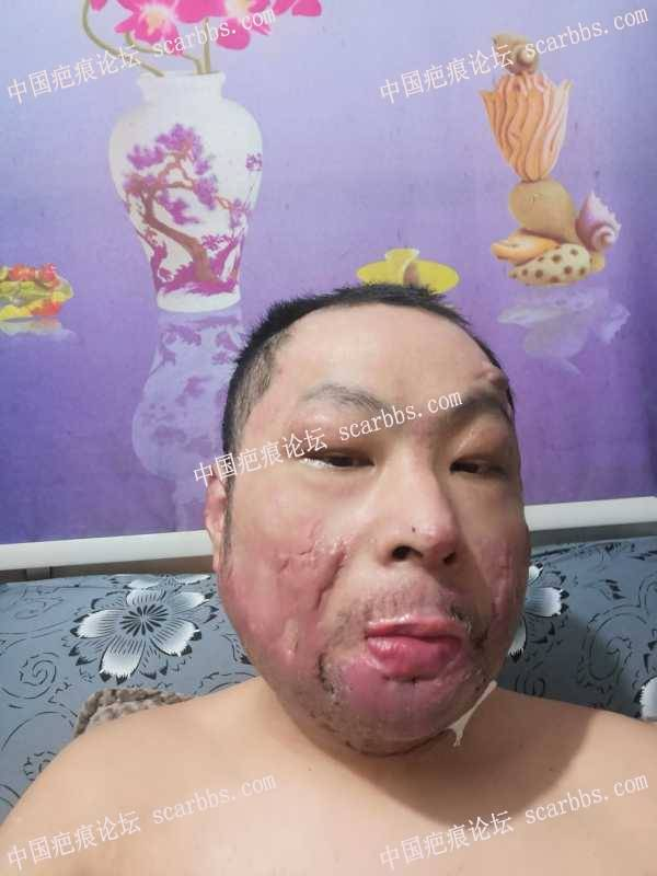 面部烧伤疤痕,可以修复吗?