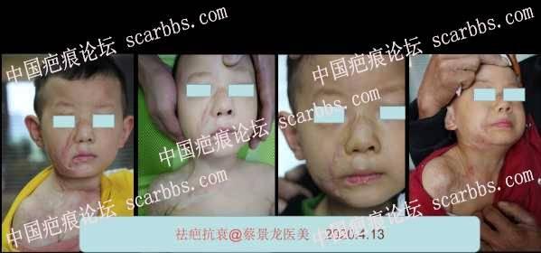 儿童疤痕治疗效果