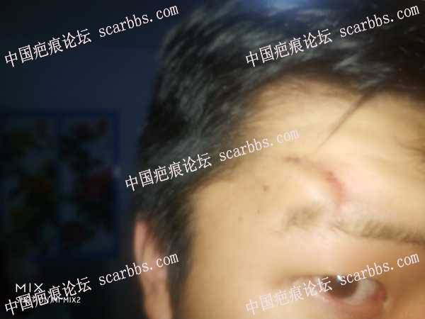 有没有西安成功去除凹陷疤痕的疤友