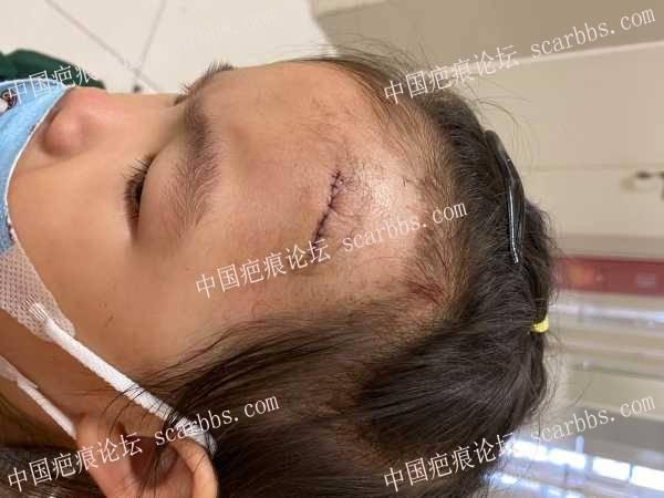 2岁半不到女宝额头缝针,无经验妈妈寻求后续祛疤方法