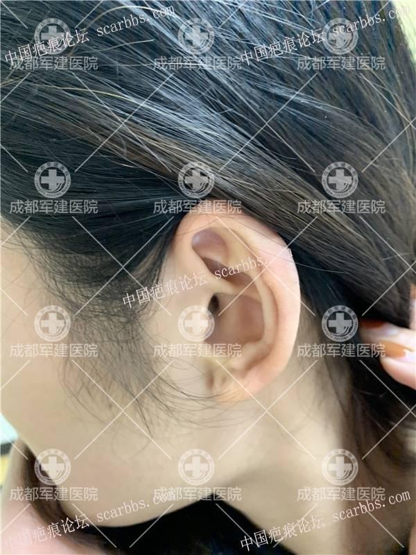 """""""党一刀""""摘除耳部炸弹--疙瘩疤痕"""