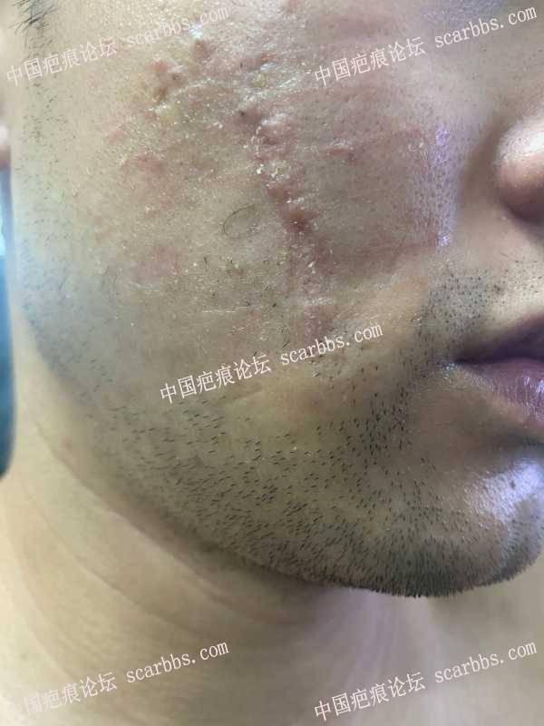 右脸疤痕做了手术切缝