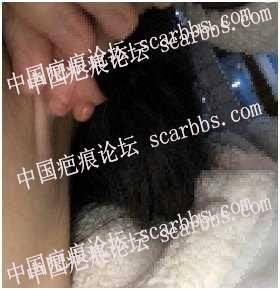 #新人发帖# 打耳洞造成的瘢痕疙瘩,去打了软化针和SRT放疗