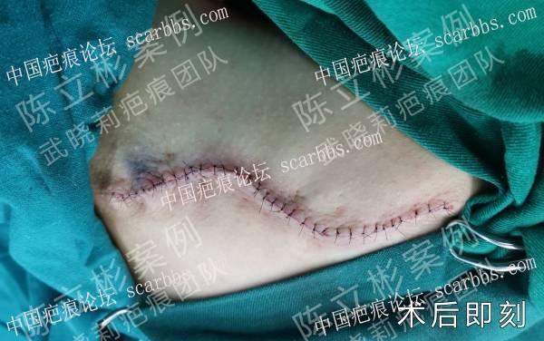 肩背疤痕疙瘩术后17个月随访复诊记录