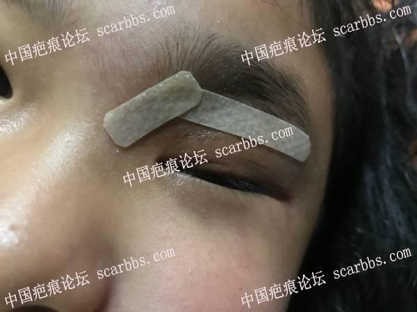 眼皮今天全部痂脱落的第二天,伤口有点凹陷