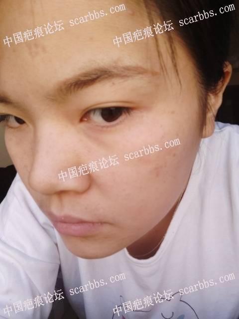 哺乳期脸上起带状疱疹,开始抗疤路