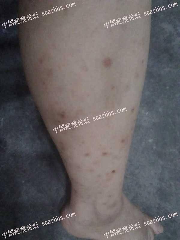 腿部蚊子咬后手抓留下的疤痕怎么治疗?
